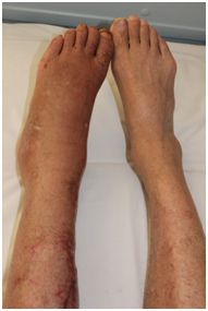Did you know that varicose veins can also lead to foot pain?